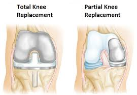 Partial and full knee replacements