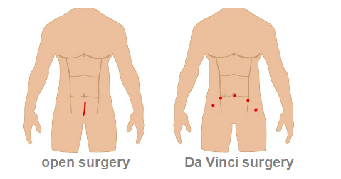 Open vs. Da Vinci prostatectomy