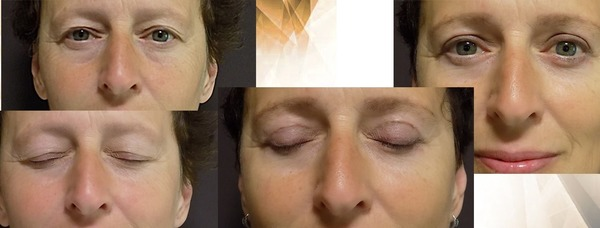 Before and after blepharoplasty in Forme Clinic