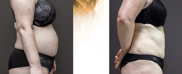 Before and after the liposuction in Forme Clinic