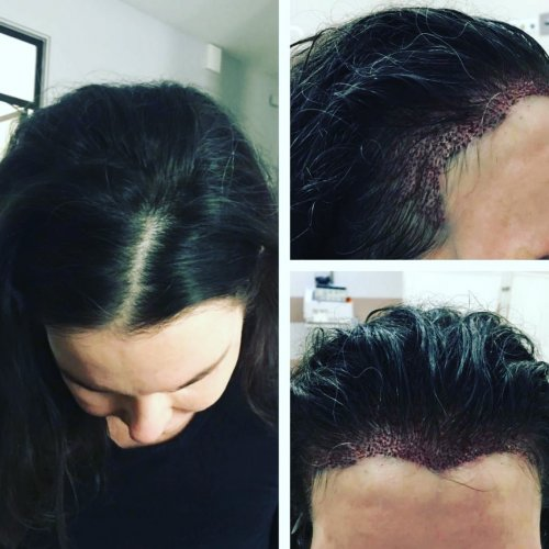 Hair transplant in a woman