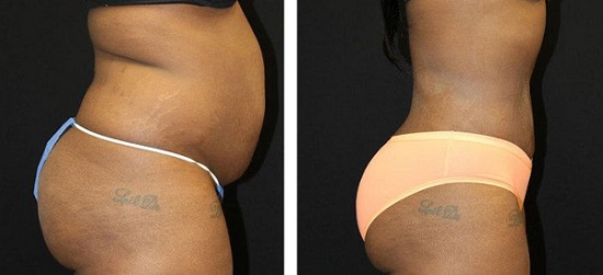 Liposuction: before and after